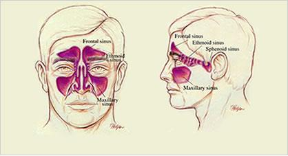 Cronoc Sinusitis Graphic (Image taken from Netter's Anatomy textbook)